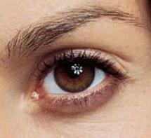 alanis eye