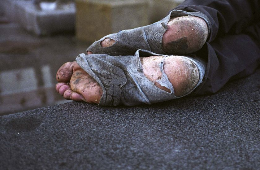 homeless-feet1